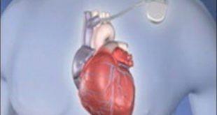 Kalp Büyümesi Tehlikeli Midir?