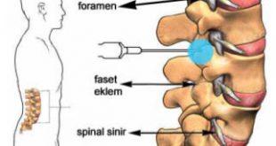 Lazer ile kireçlenme (faset artrozu/ spondiloz) tedavisi